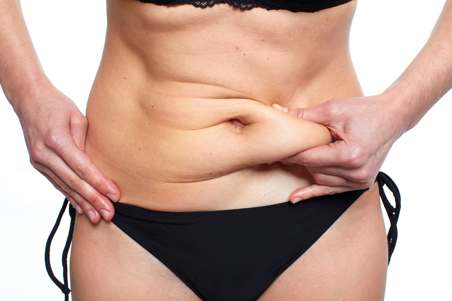 Indianapolis Tummy Tuck FAQ