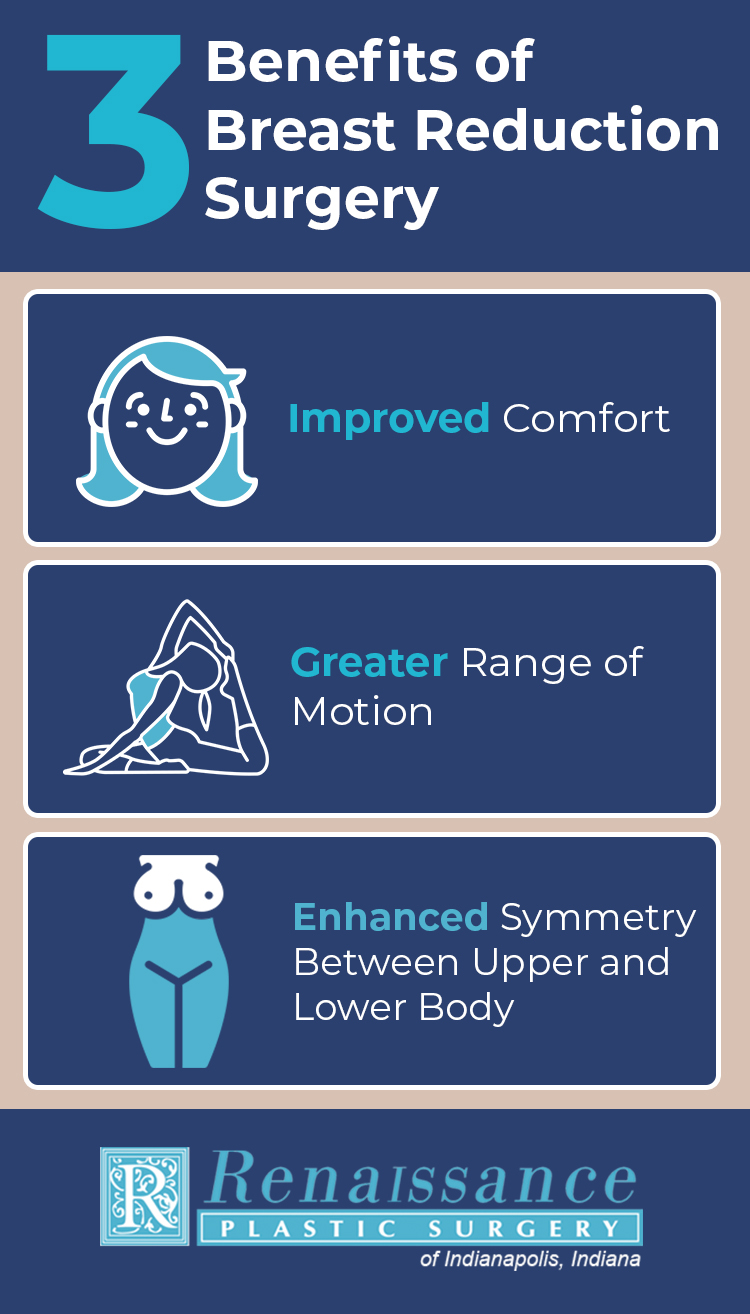 Benefits of Breast Reduction Surgery Infographic