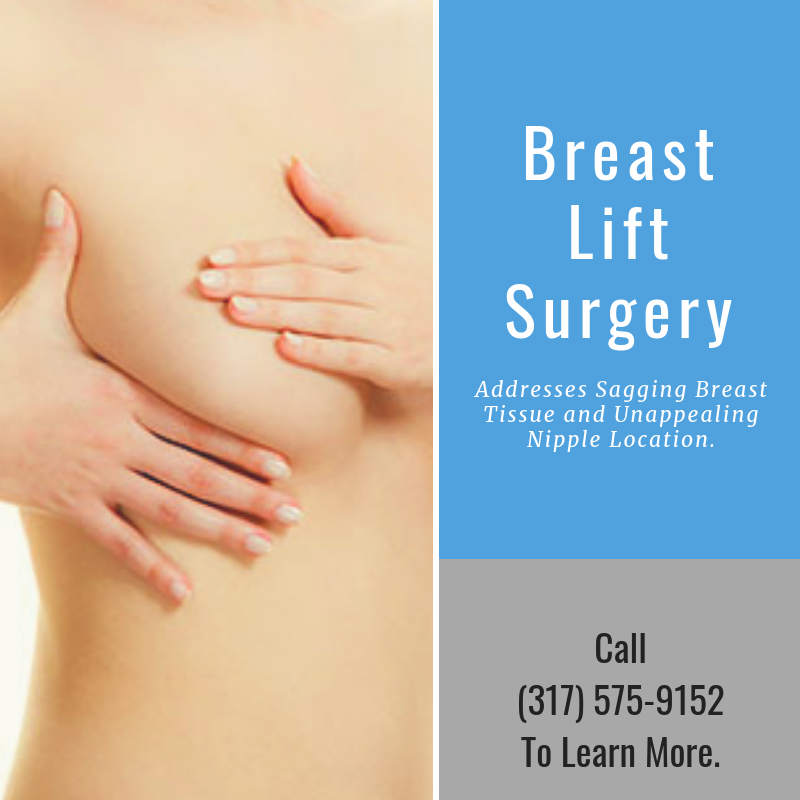 Breast Lift | Indianapolis | Renaissance Plastic Surgery