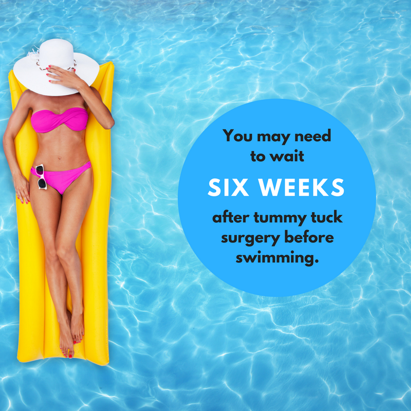 You should plan on waiting at least six weeks before swimming after abdominoplasty