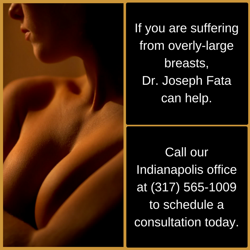 Gigantomastia is a rare medical condition in which breast tissue grows too rapidly. To learn about treatment options in Indianapolis, call Dr. Joseph Fata at 317-575-9152 today