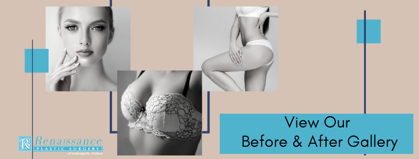 Before and After Gallery | Renaissance Plastic Surgery | Indianapolis, IN