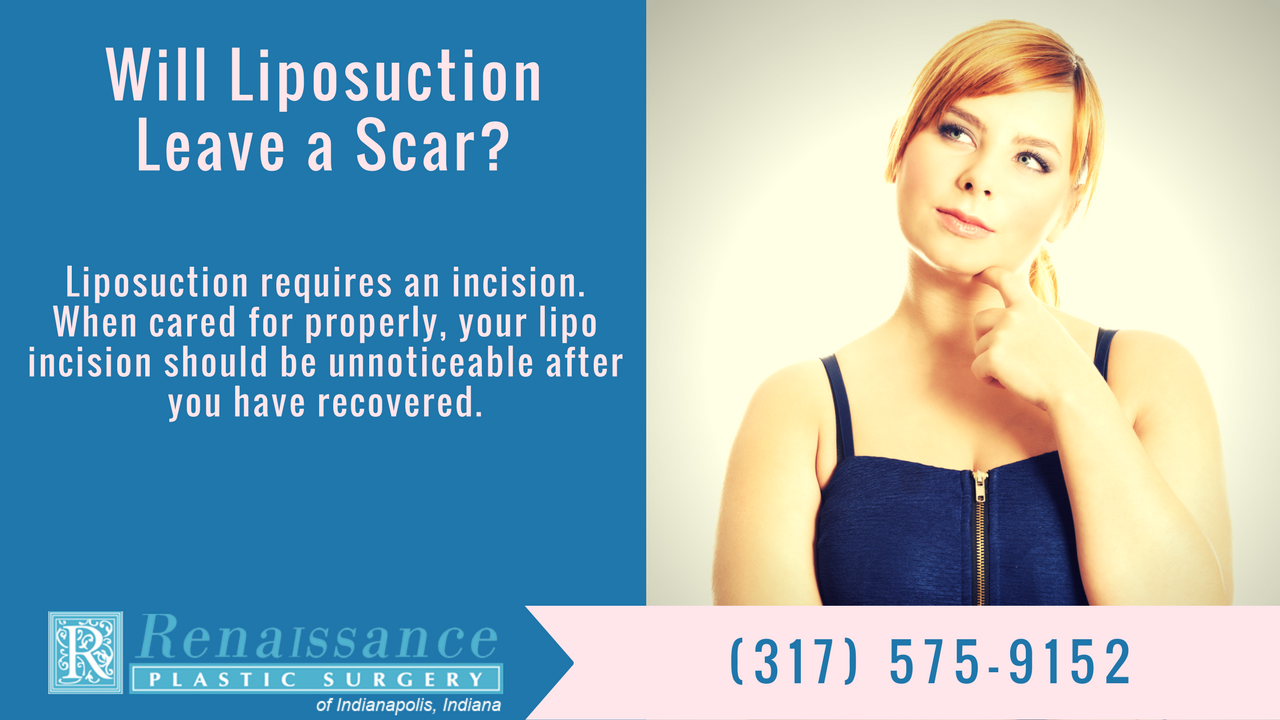 Scarring and Liposuction | Indianapolis, IN