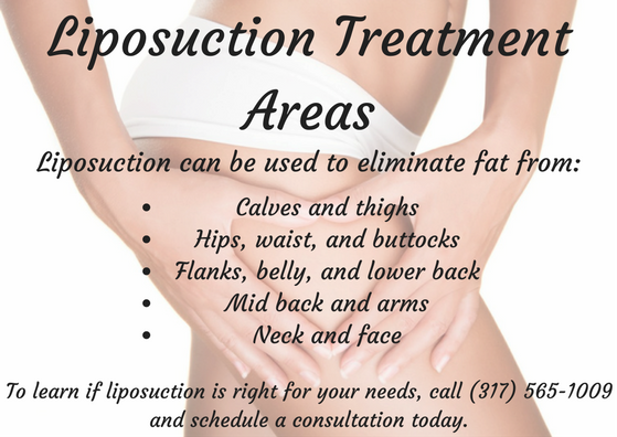To learn what liposuction can do for you, call board-certified Indianapolis plastic surgeon Dr. Joseph Fata at 317-575-9152 and schedule a consultation today