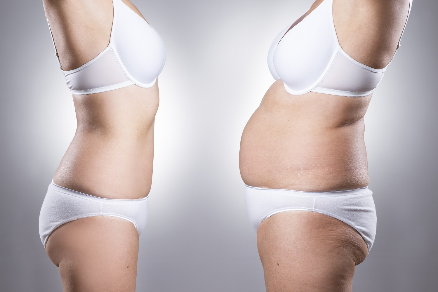 Indianapolis post-Bariatrtaic Surgery Body Contouring