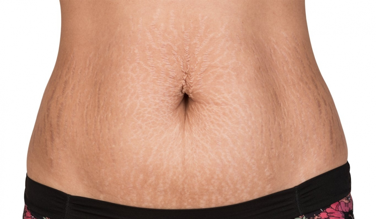 Stretch marks cannot be erased, but they can be reduced. In Indiana, call Dr. Joseph Fata at 317-575-9152 to learn more