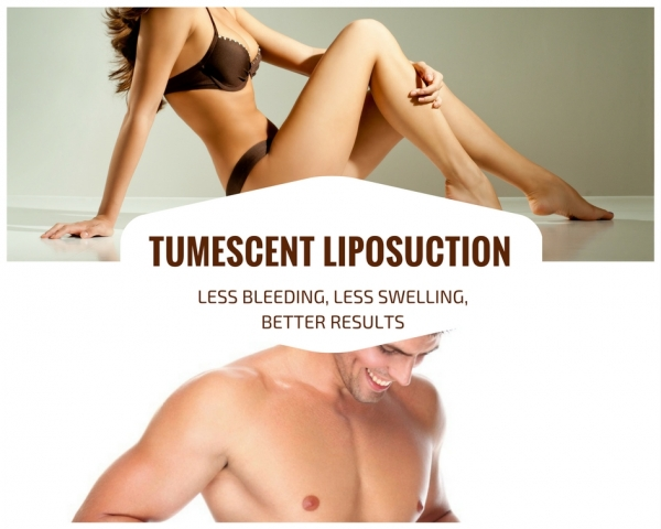 Tumescent Liposuction | Indianapolis Plastic Surgeon