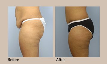 Indianapolis Tummy Tuck before and after photo | Body Contouring done by Dr. Fata
