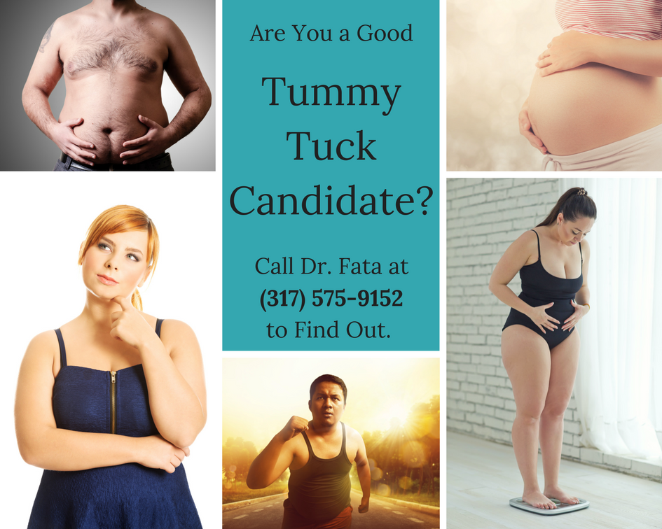 Candidates for Abdominoplasty in Indianapolis