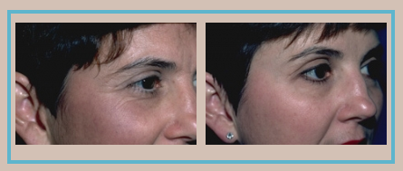 Botox Before and After | Dr Fata in Indianapolis