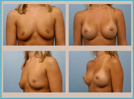 Breast Augmentation Before and After | Indianapolis