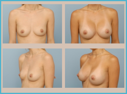 Indianapolis Breast Augmentation Before and After