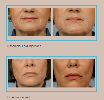 Juvederm and fillers before and after gallery
