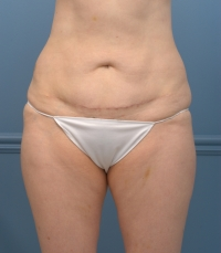 mini tummy tuck, before, side view