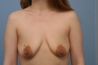 vertical breast lift with augmentation, before, front view