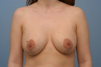vertical breast lift with augmentation, after, front view