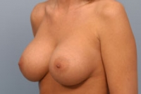Saline breast implants indiana believe, that