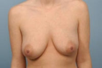 Saline breast implants indiana can