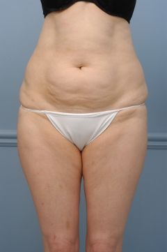 mini tummy tuck, before, front view