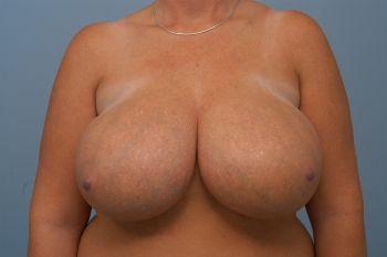 breast reduction, before, front view