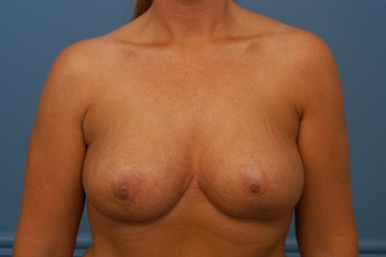 breast reduction, after, front view