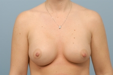 Any case. Saline breast implants indiana