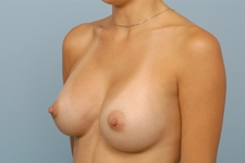 breast implant surgery indiana