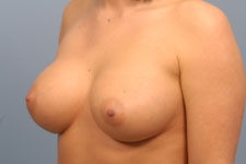 Pity, that Saline breast implants indiana idea